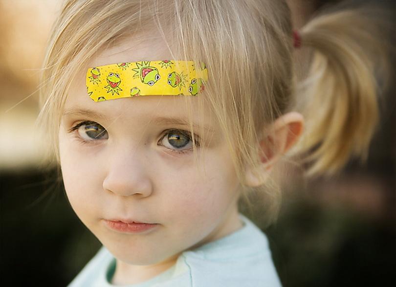 Детские ушибы: советуют мамы