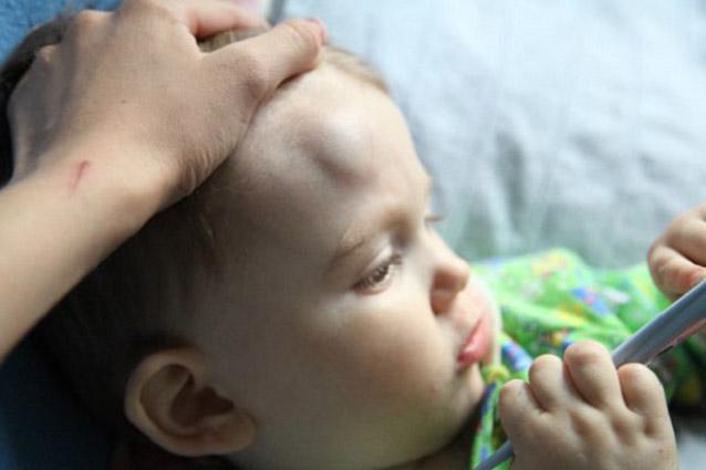 Шишка после удара у ребенка